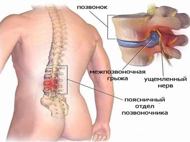 Грыжа шморля: лечение и симптомы
