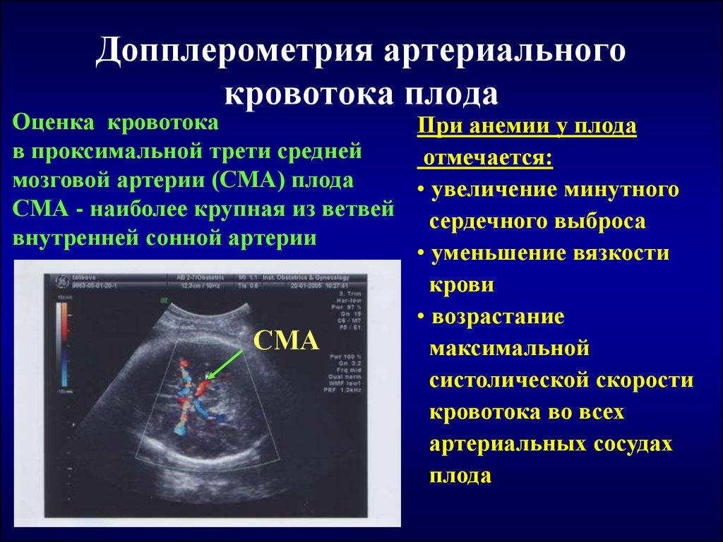 Доплер-узи при беременности: что это такое, доплером, уздг при беременности – доплерографическое исследование, нормы и расшифровка допплерографии плода