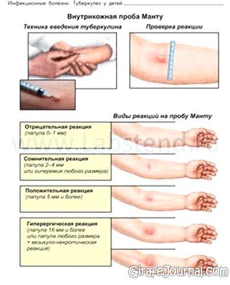 Причины развития, симптомы и лечение папулезной крапивницы