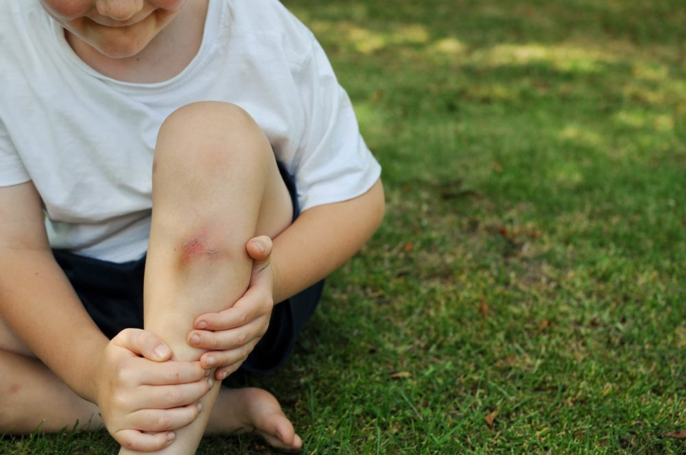 Что такое ушиб и какие симптомы сопровождают травму - медицинский портал schoolmedcentre.ru