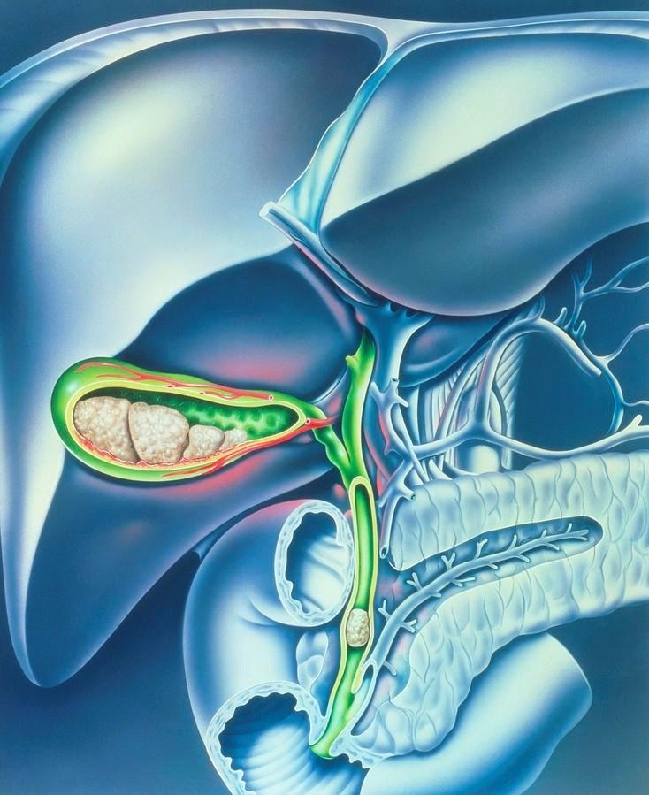 Хронический холецистит: причины, симптомы, диагностика, лечение, диета