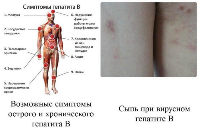 Что такое вирусный гепатит с (ц)