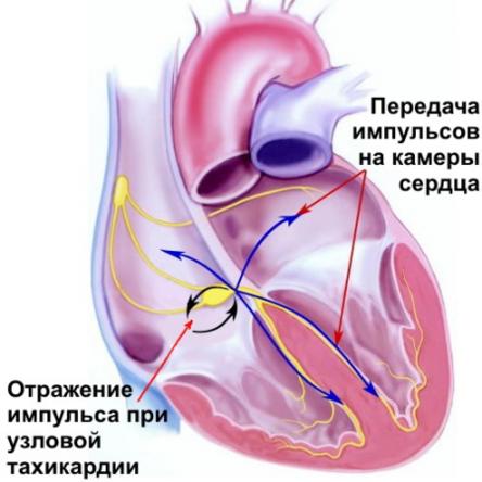 Тахикардия - причины, симптомы, диагностика и лечение
