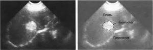 Доброкачественные опухоли печени. гемангиомы