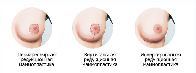 Маммопластика — википедия
