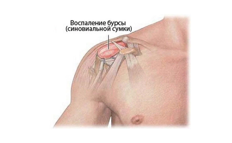 Бурсит плечевого сустава: что это такое, симптомы, лечение, к какому врачу, виды, гимнастика