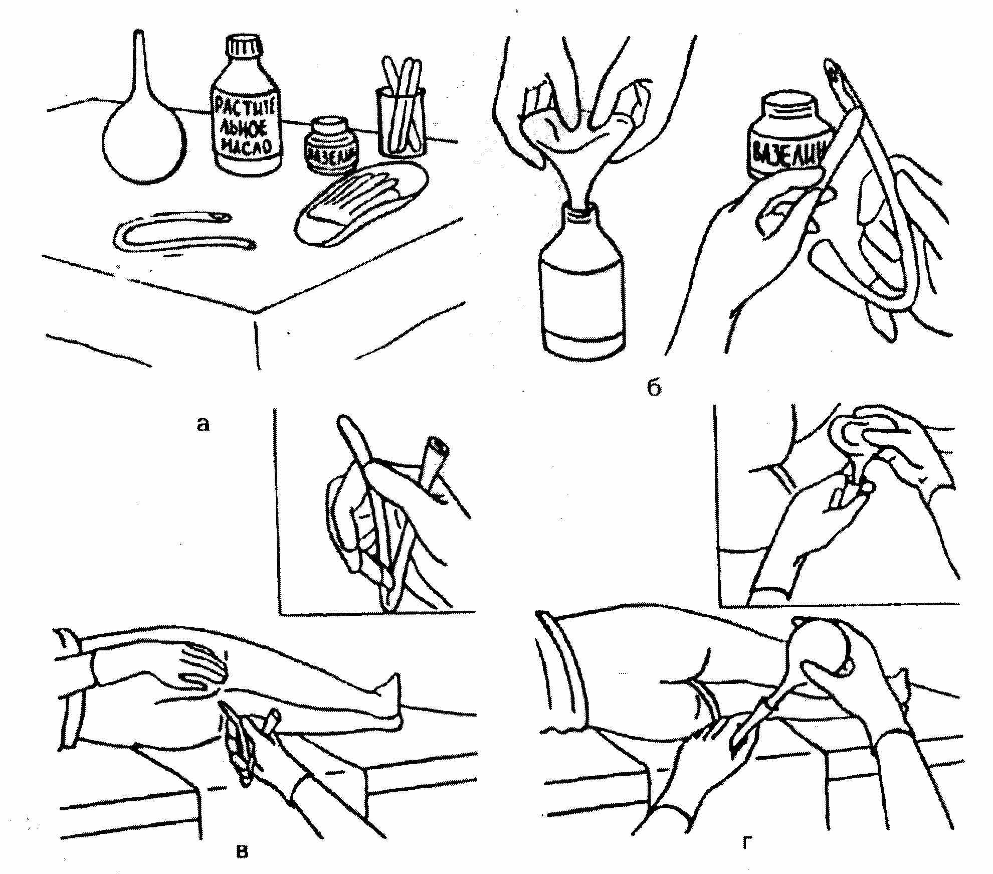 Как правильно называется клизма - помощь доктора
