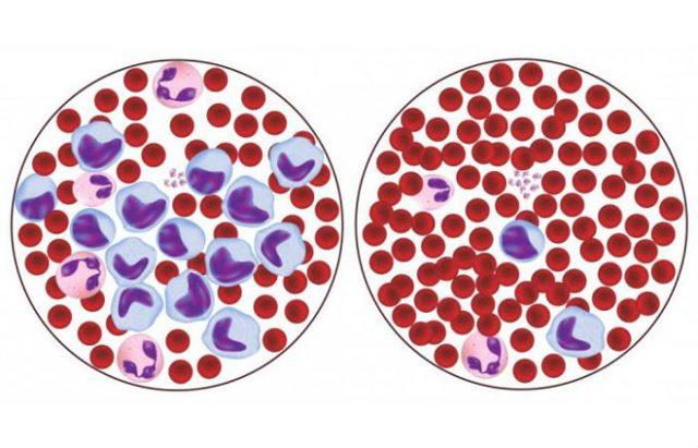 Повышены лимфоциты в крови: о чем это говорит у взрослых, причины и что значит высокий показатель у мужчин, женщин, детей