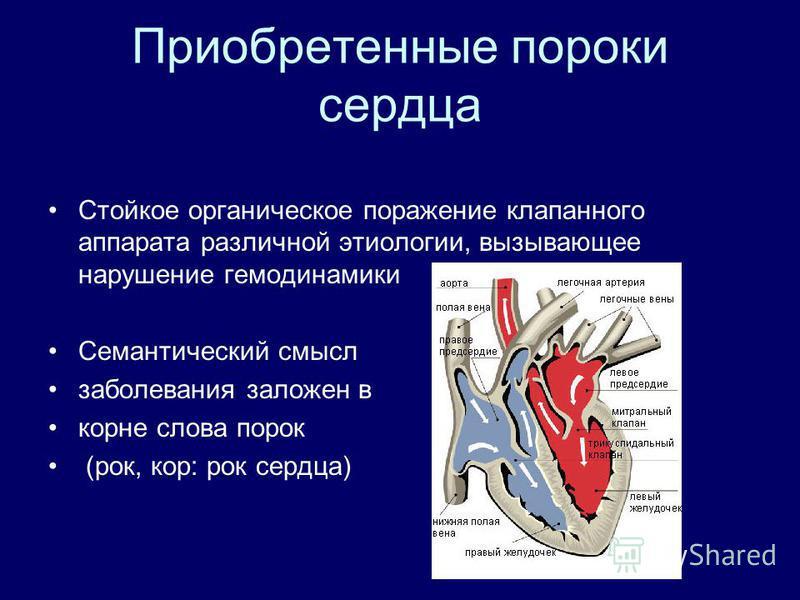 Что такое порок сердца (врожденный и приобретенный)