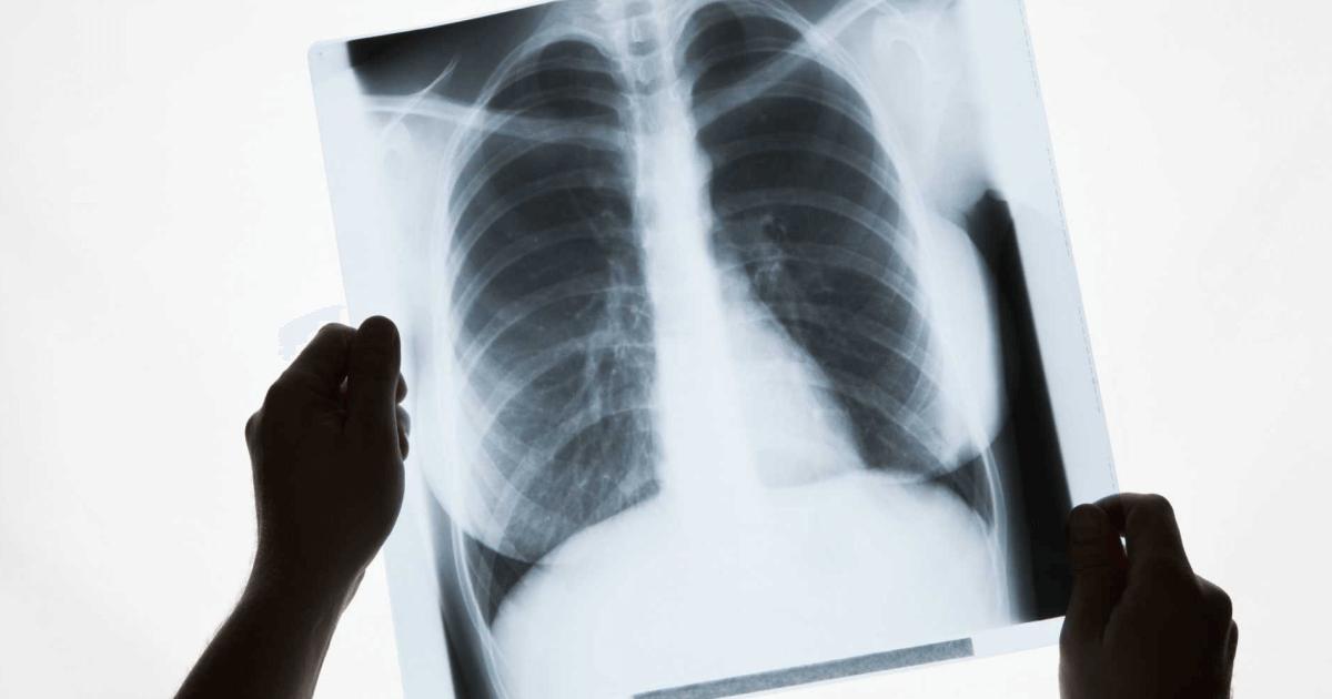 Почему развивается эмфизема легких и современные методы лечения
