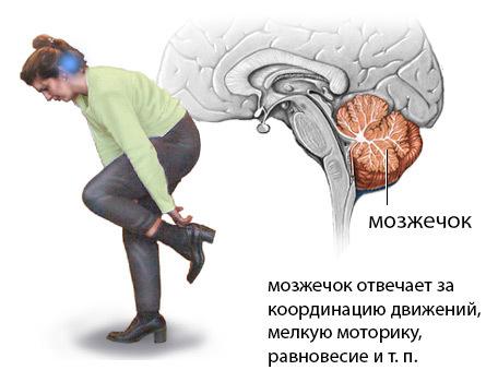 Чем опасен ишемический инсульт головного мозга