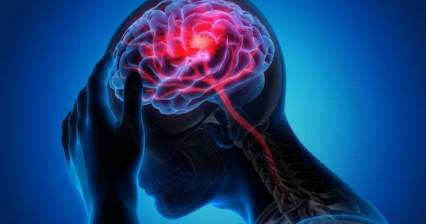 Спинальный инсульт - что это, причины, симптомы, лечение
