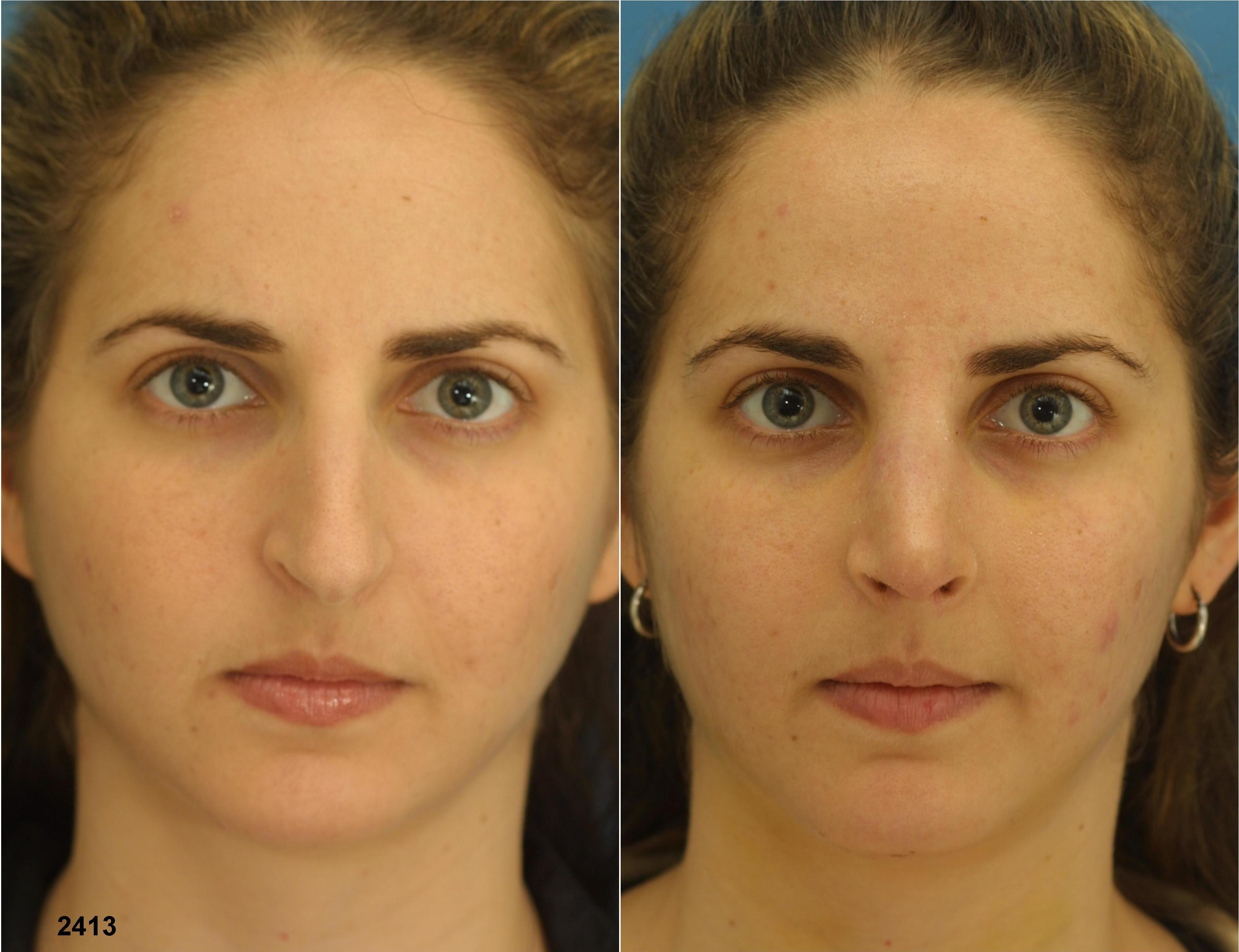Операция по исправлению носовой перегородки или септопластика | лор боклин а. к.