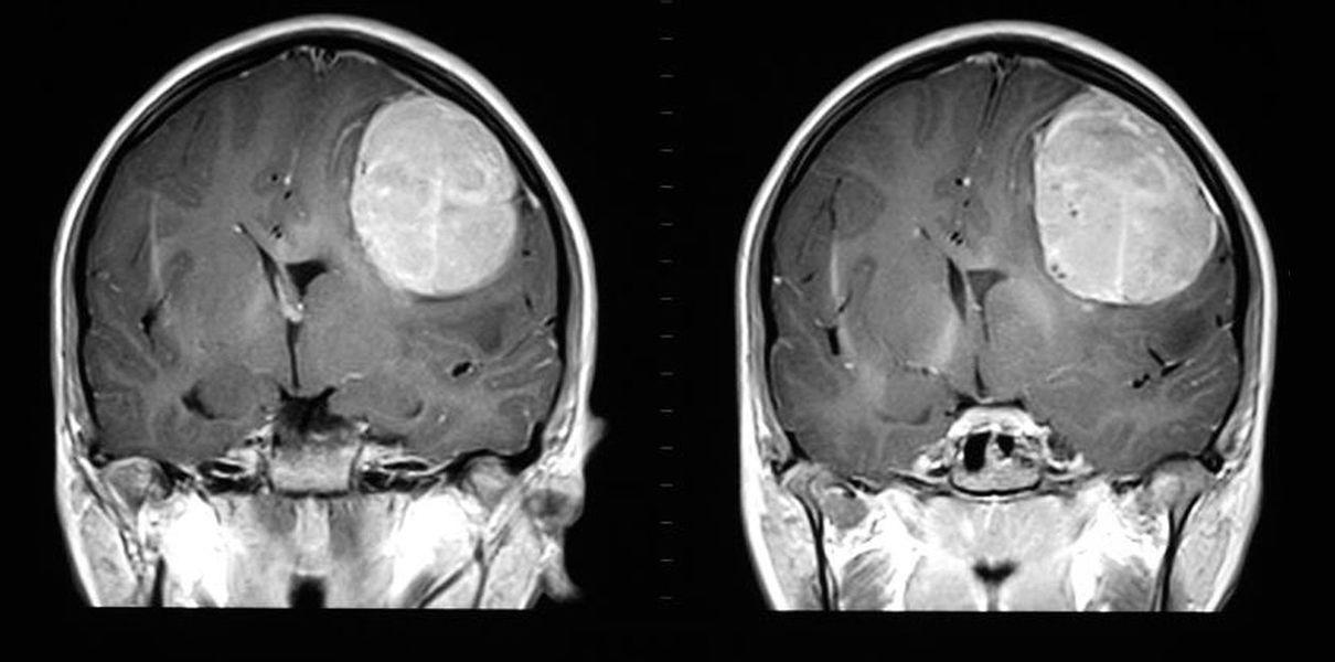 Причины и стадии развития, диагностика, симптомы и суть лечения глиобластомы головного мозга