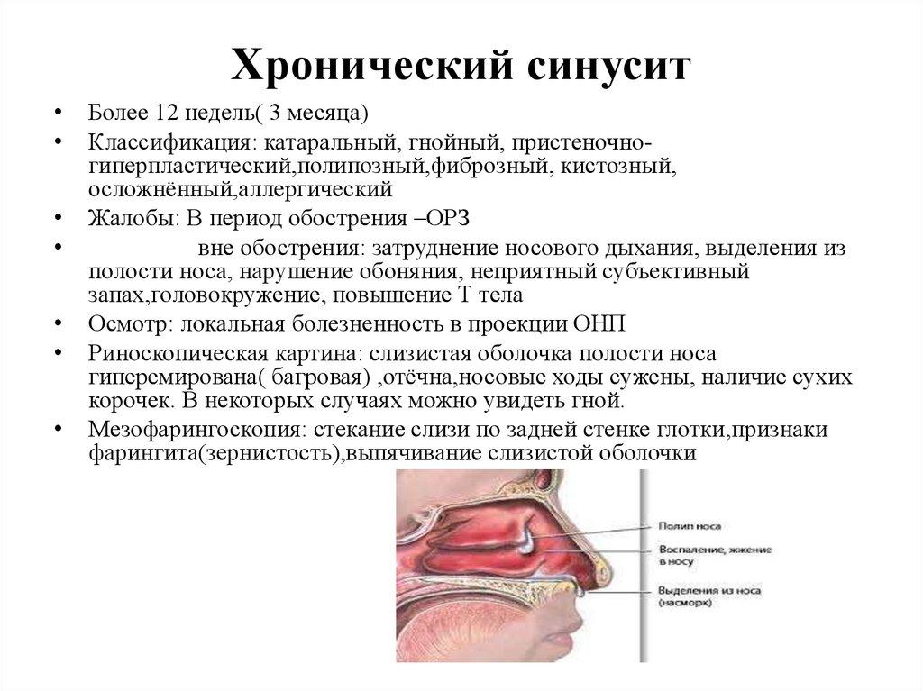 Хронический синусит у взрослых: симптомы, методы эффективного лечения