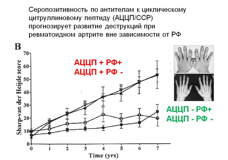 Анализ крови на аццп: норма, показания, подготовка и расшифровка