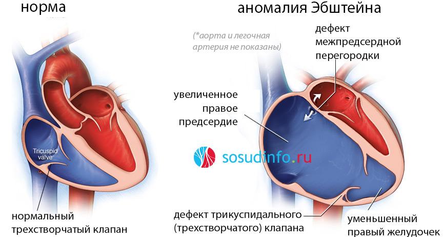 Глж сердца: причины, в чем опасность, лечение