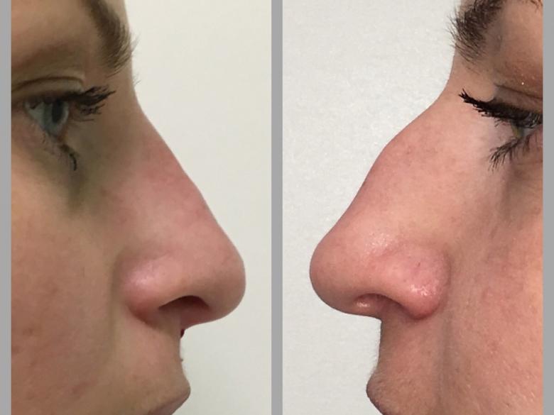 Ринопластика носа: виды, показания, цены и фото до и после