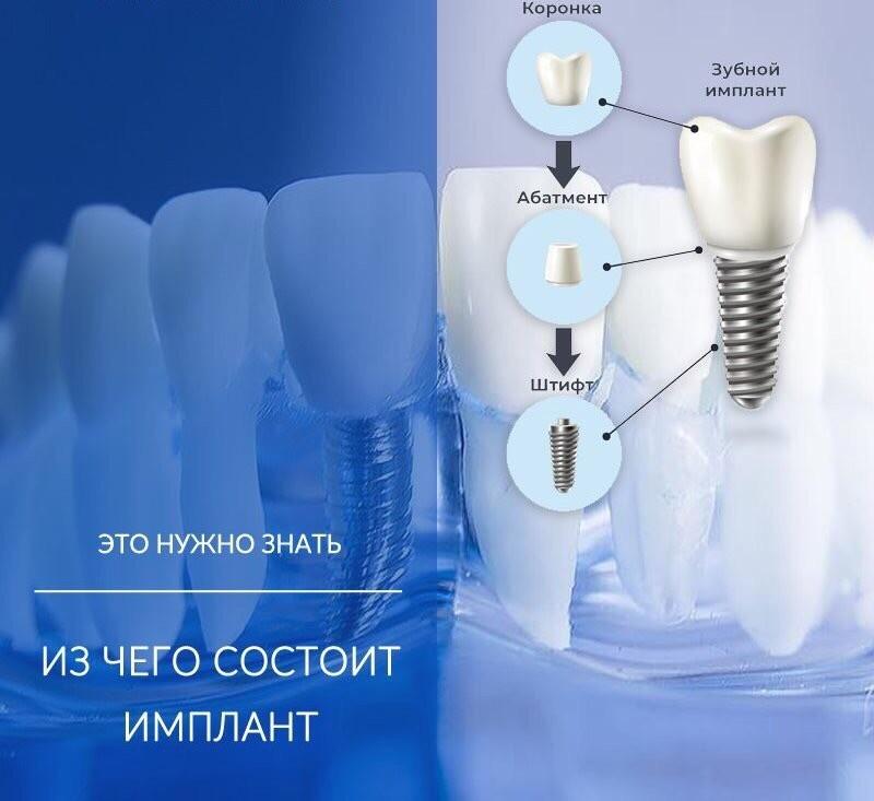 Стоимость имплантации всех зубов