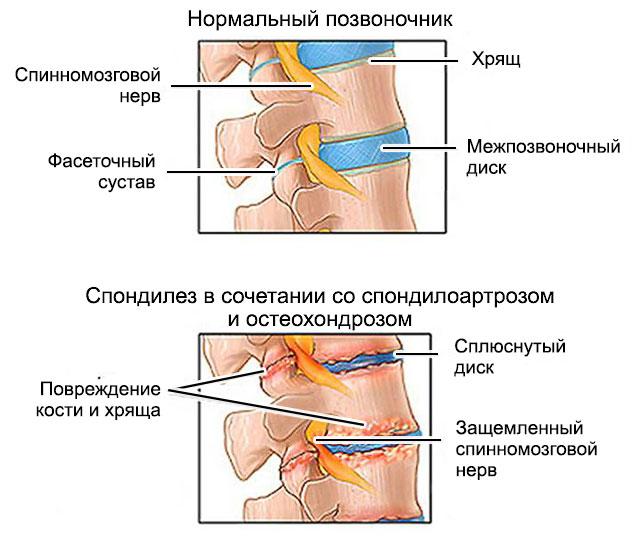 Спондилез пояснично-крестцового отдела позвоночника: симптомы, лечение, прогноз
