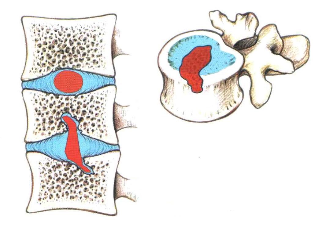 Грыжа шморля - описание, причины, симптомы, лечение