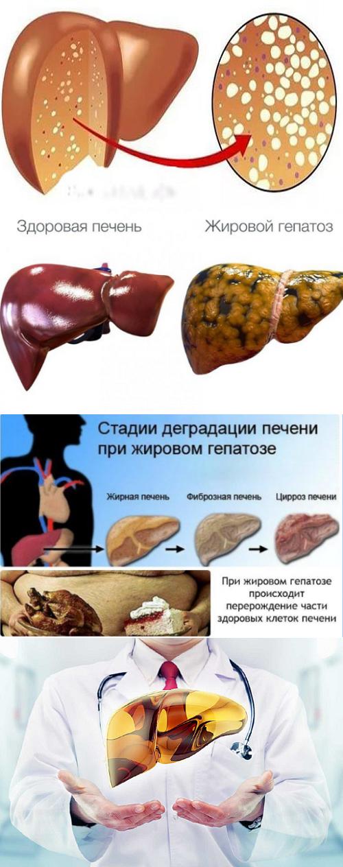 Как с помощью диеты справиться с жировым гепатозом