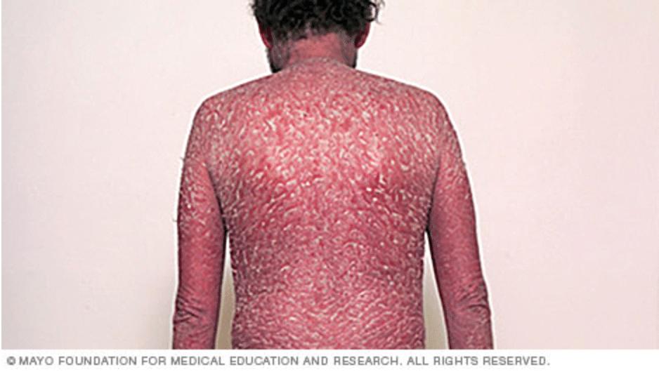 Почему и от чего появляется псориаз: причины заболевания псориазом