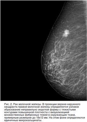 Виды маммографии : электроимпедансная, рентгеновская, прицельная и другие технологии