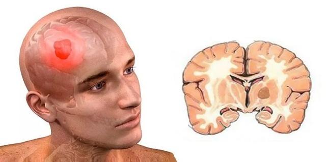 Глиобластома: симптомы и лечение