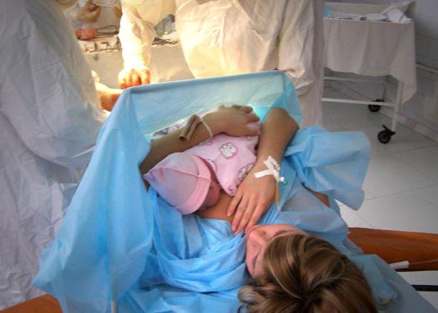 Кесарево сечение. показания и противопоказания к плановой и экстренной операции