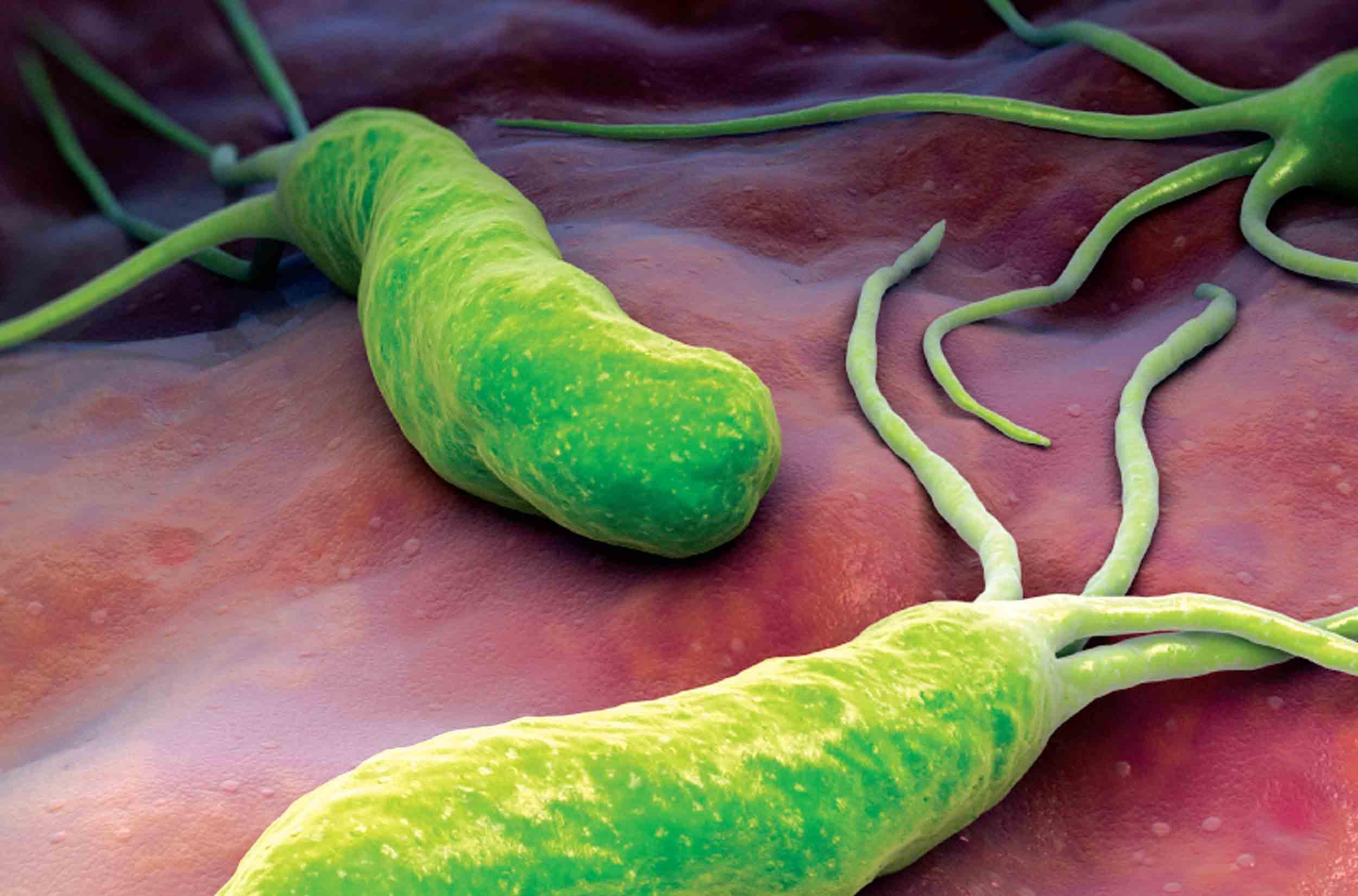 Бактерия хеликобактер пилори:симптомы и лечение
