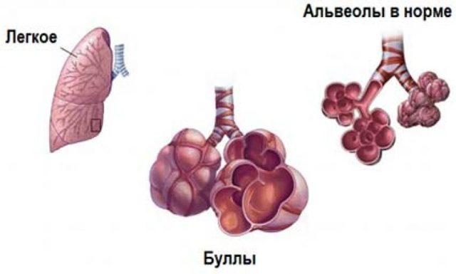 Народные средства лечения буллезной эмфиземы легких