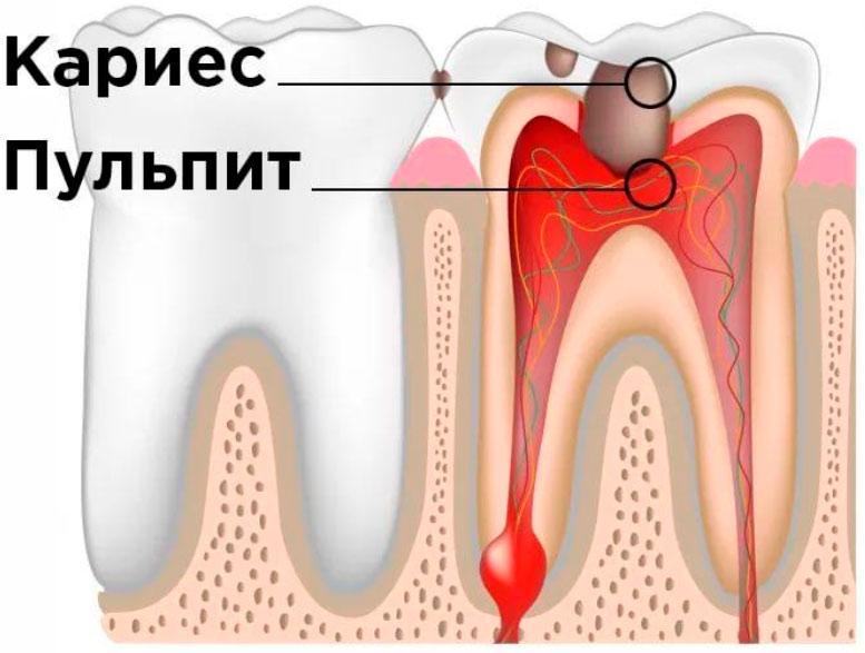 Депульпирование зубов - что это такое? цена, показания и противопоказания