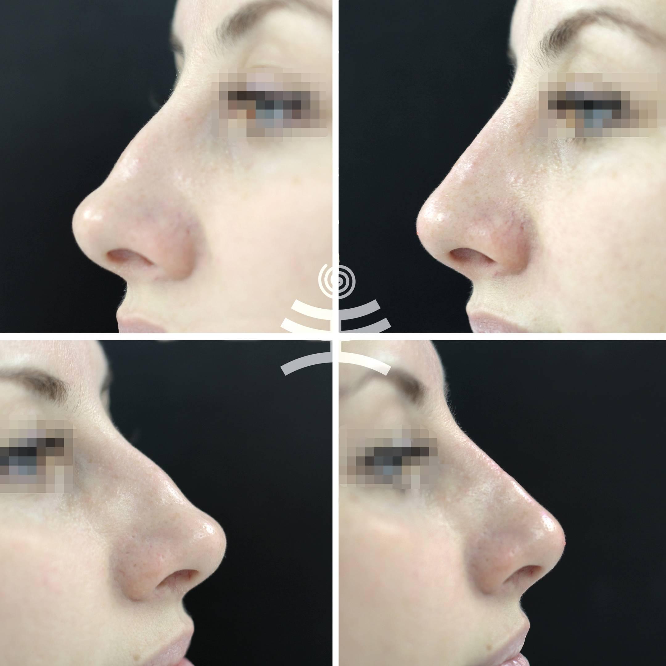 Ринопластика звезд фото до и после - знаменитости, фото доказательства, эксперты | ринопластика носа