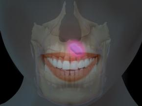 Киста на зубе: способы лечения или удаления нароста