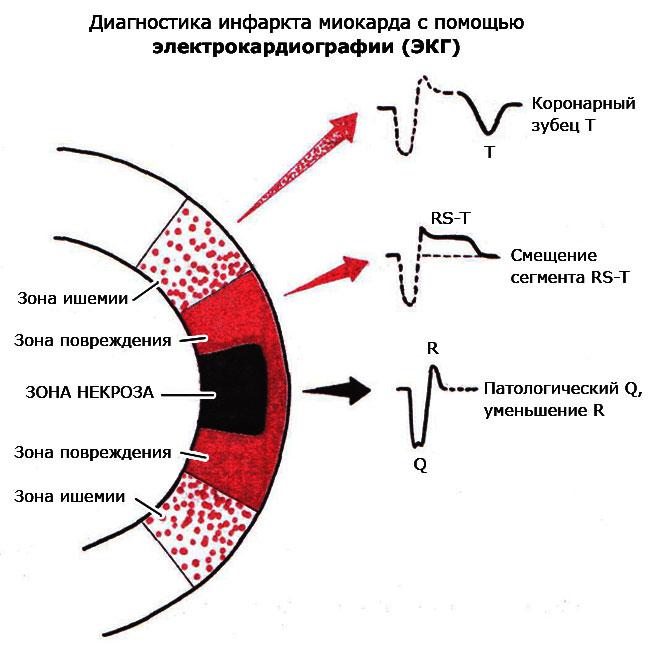 Инфаркт миокарда что это такое, стадии, фото