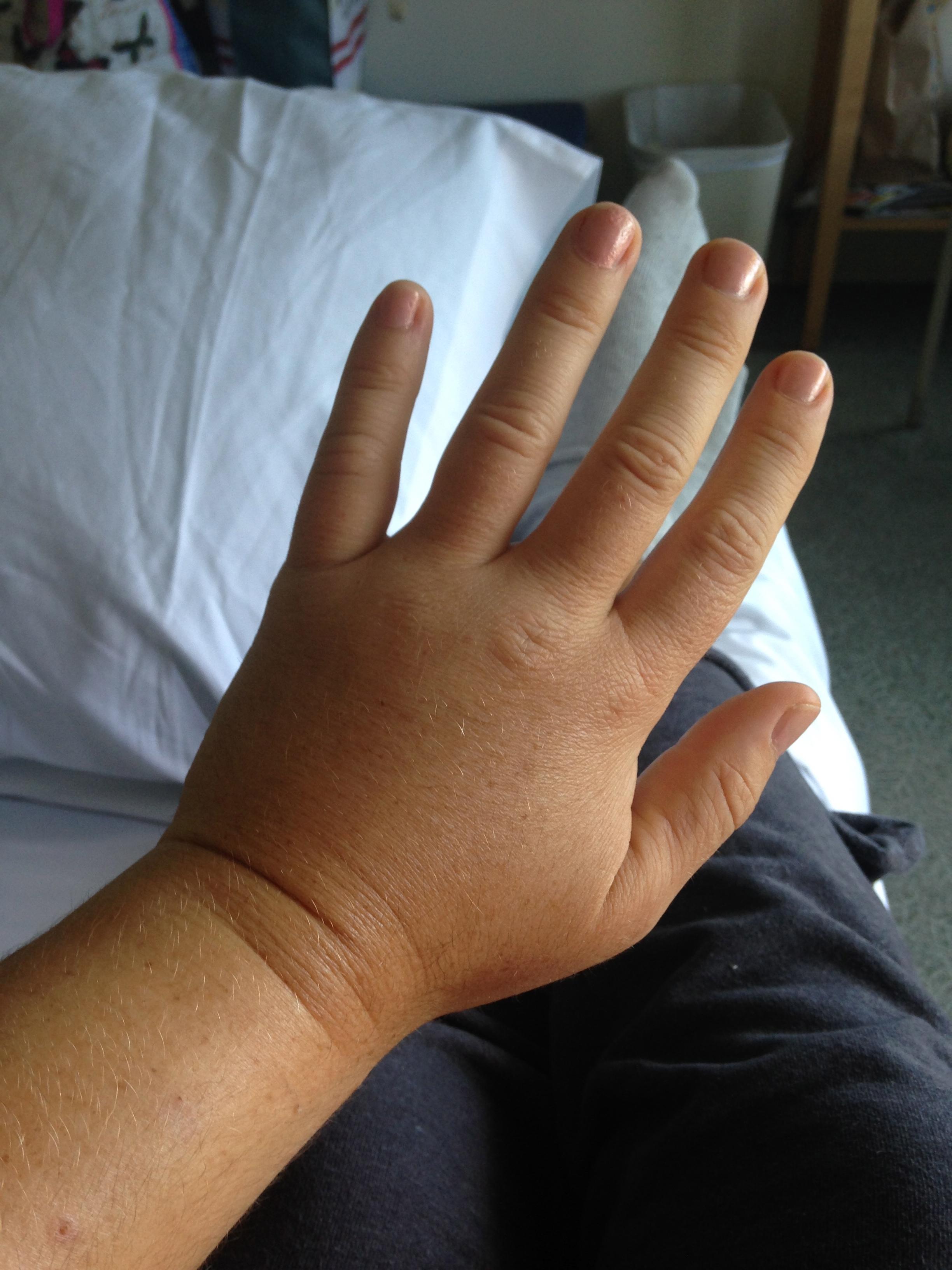 Что такое рабдомиолиз и какие симптомы заболевания