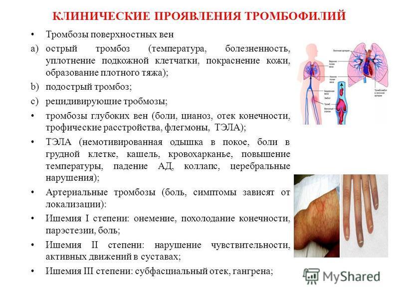 Тромбофилия: возникновение, генетическая составляющая, виды, лечение, риски