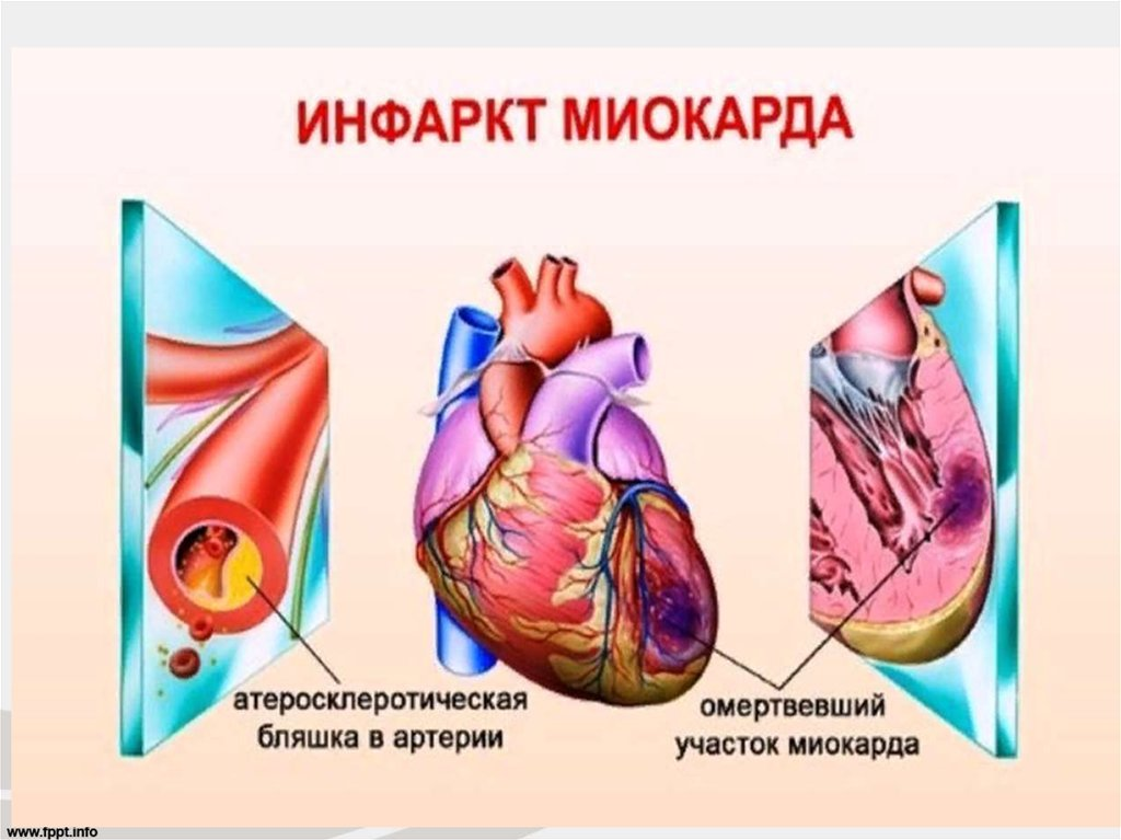 Инфаркт сердца: причины, признаки, первая помощь