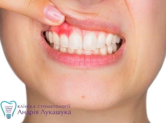 Киста на корне зуба - удалять или лечить? причины появления и способы лечение