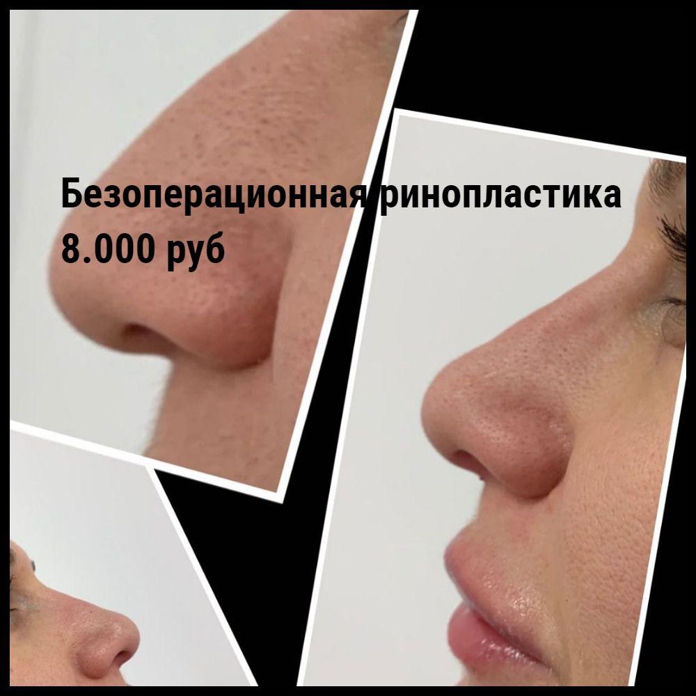 Эстетическая ринопластика
