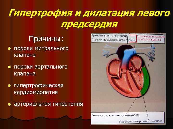 Дилатация камер сердца: классификация, причины, лечение