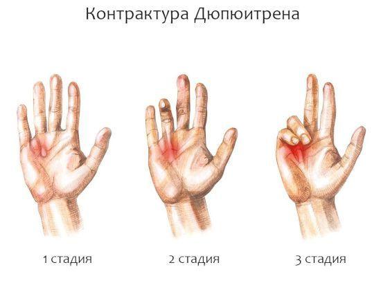 Контрактура — википедия. что такое контрактура
