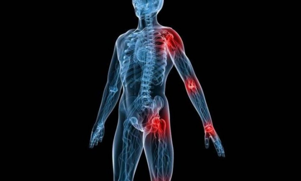 Артралгия коленных и тазобедренных суставов: что это такое, симптомы и лечение