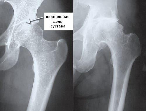 Коксартроз тазобедренного сустава – симптомы и лечение без операции