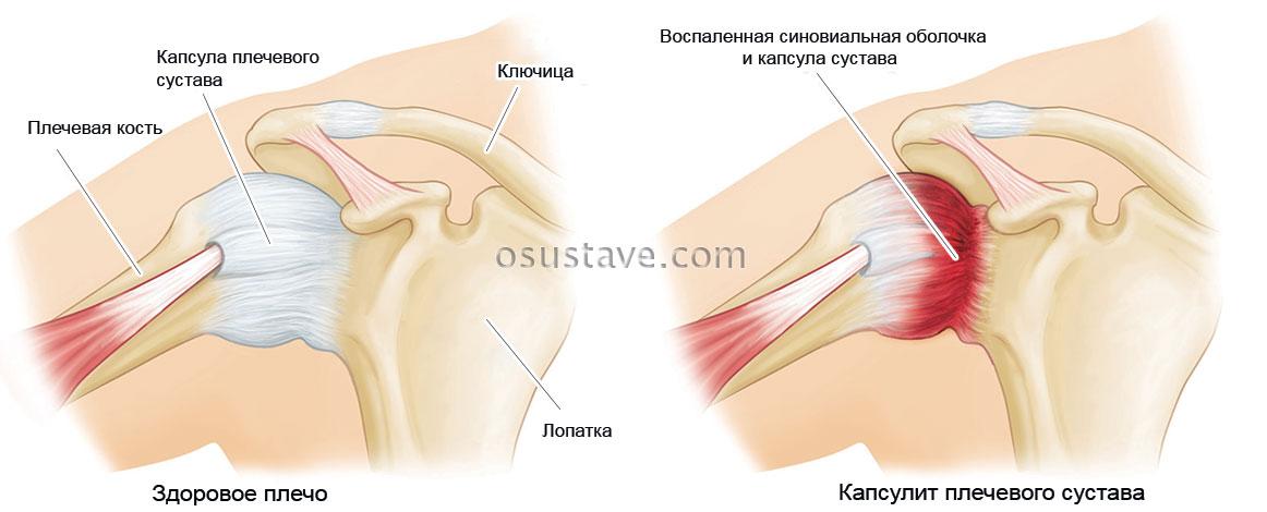 Бурсит плечевого сустава: причины, симптомы и лечение народными средствами в домашних условиях