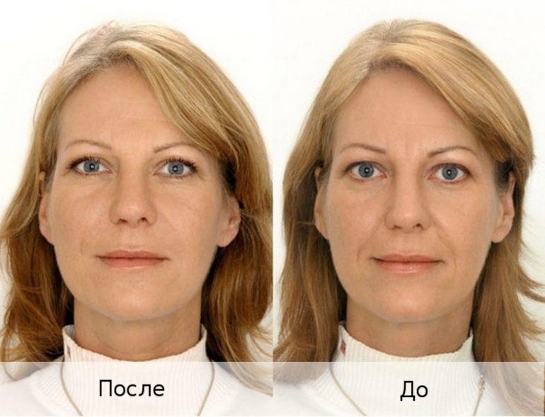 Что такое филлеры для лица? (перечень разновидностей)