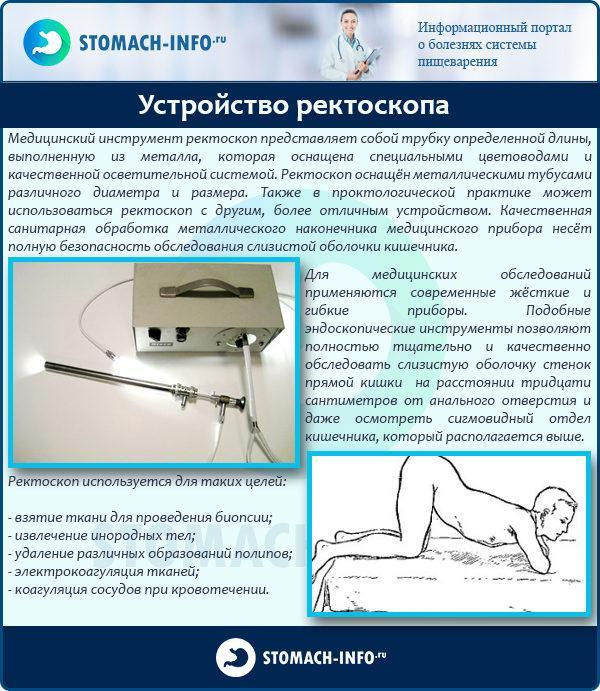 Аноскопия – симптомы, лечение, фото.
