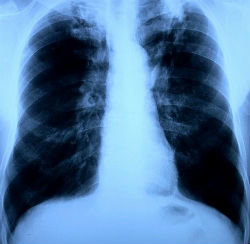 Туберкулема легких - симптомы болезни, профилактика и лечение туберкулемы легких, причины заболевания и его диагностика на eurolab