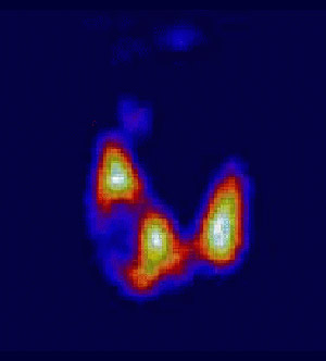 Сцинтиграфия щитовидной железы: что это такое, подготовка, результаты сцинтиграфии